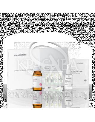 """Профессиональный набор """"Акнепил"""" Acne - Peel System :"""